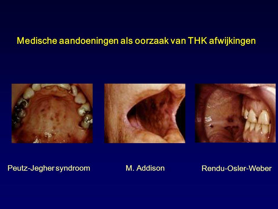 Medische aandoeningen als oorzaak van THK afwijkingen Peutz-Jegher syndroomM. Addison Rendu-Osler-Weber