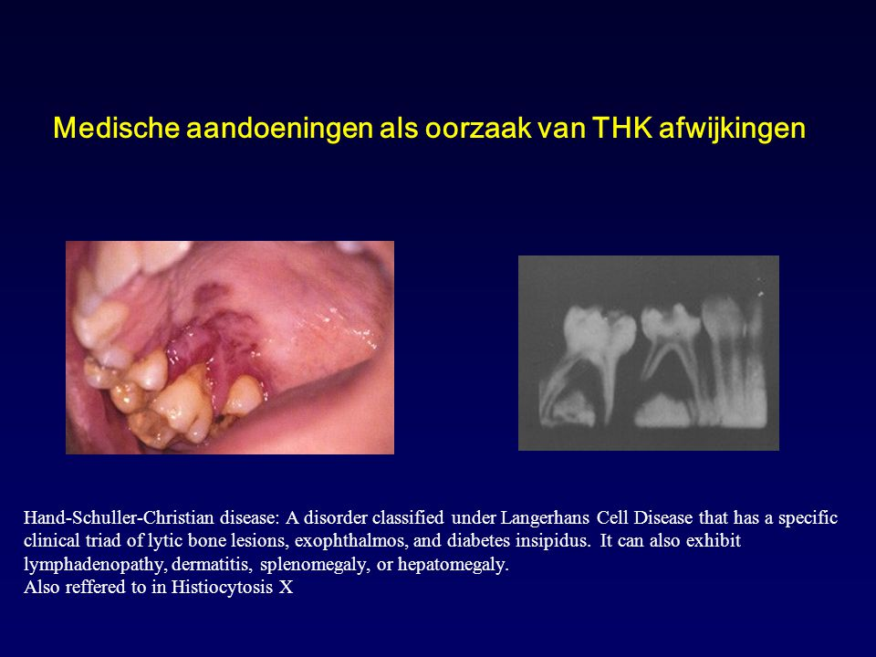 Medische aandoeningen als oorzaak van THK afwijkingen Hand-Schuller-Christian disease: A disorder classified under Langerhans Cell Disease that has a