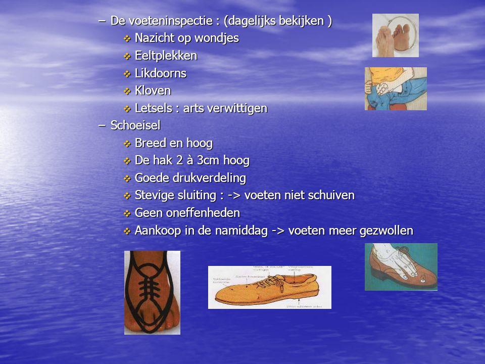 –De voeteninspectie : (dagelijks bekijken )  Nazicht op wondjes  Eeltplekken  Likdoorns  Kloven  Letsels : arts verwittigen –Schoeisel  Breed en
