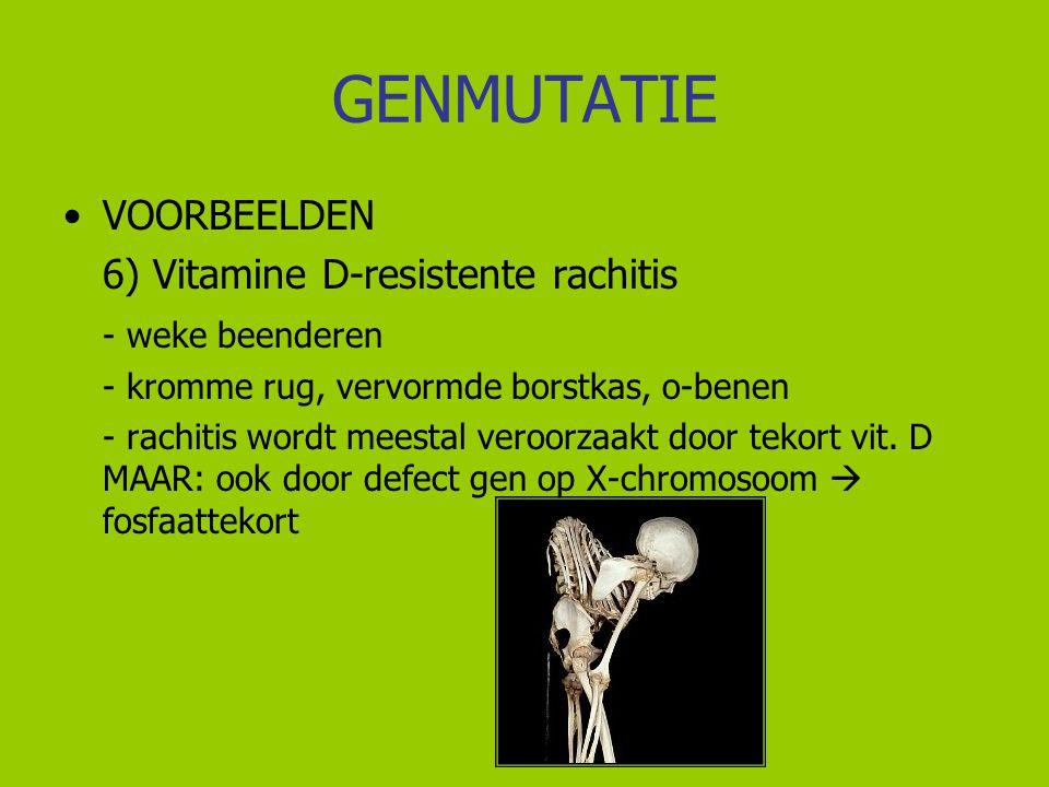 GENMUTATIE VOORBEELDEN 6) Vitamine D-resistente rachitis - weke beenderen - kromme rug, vervormde borstkas, o-benen - rachitis wordt meestal veroorzaa