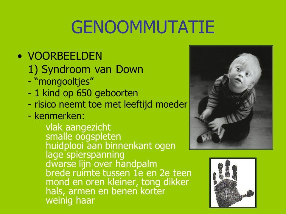"""GENOOMMUTATIE VOORBEELDEN 1) Syndroom van Down - """"mongooltjes"""" - 1 kind op 650 geboorten - risico neemt toe met leeftijd moeder - kenmerken: vlak aang"""