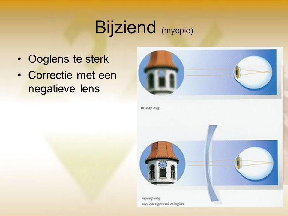Bijziend (myopie) Ooglens te sterk Correctie met een negatieve lens