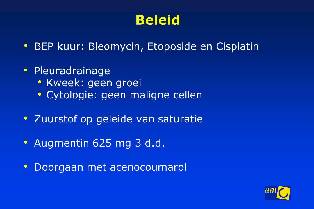 Beleid BEP kuur: Bleomycin, Etoposide en Cisplatin Pleuradrainage Kweek: geen groei Cytologie: geen maligne cellen Zuurstof op geleide van saturatie Augmentin 625 mg 3 d.d.