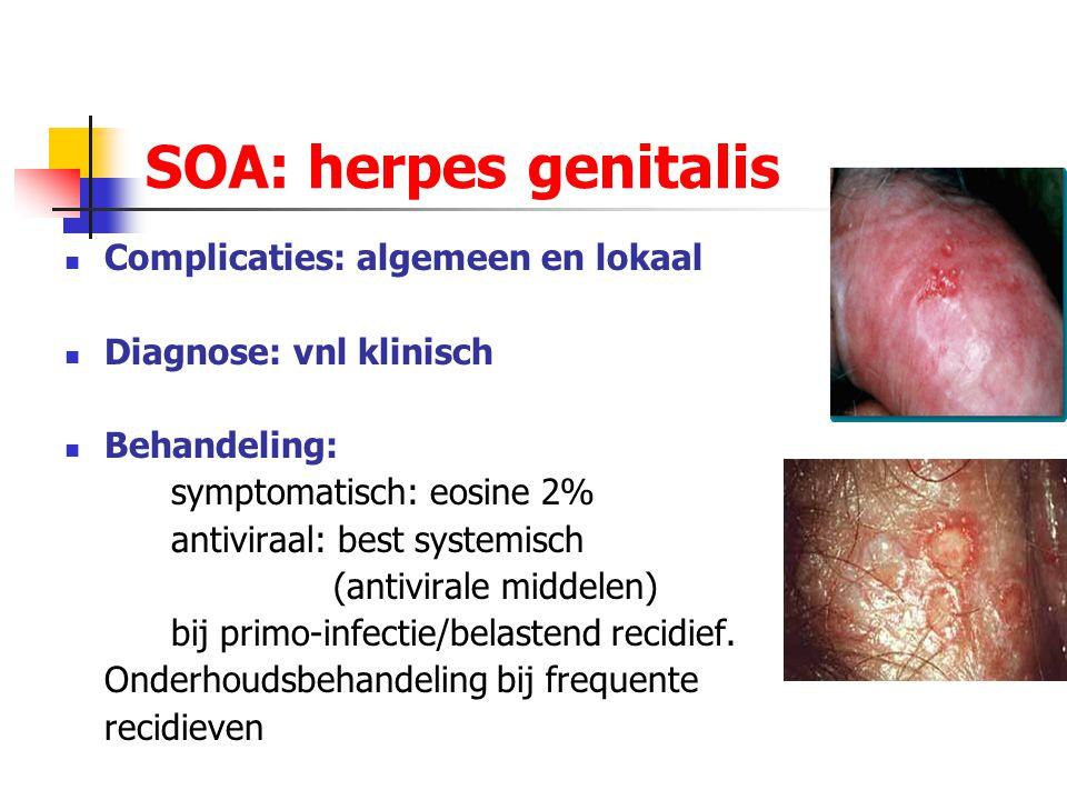 SOA: herpes genitalis Complicaties: algemeen en lokaal Diagnose: vnl klinisch Behandeling: symptomatisch: eosine 2% antiviraal: best systemisch (antiv