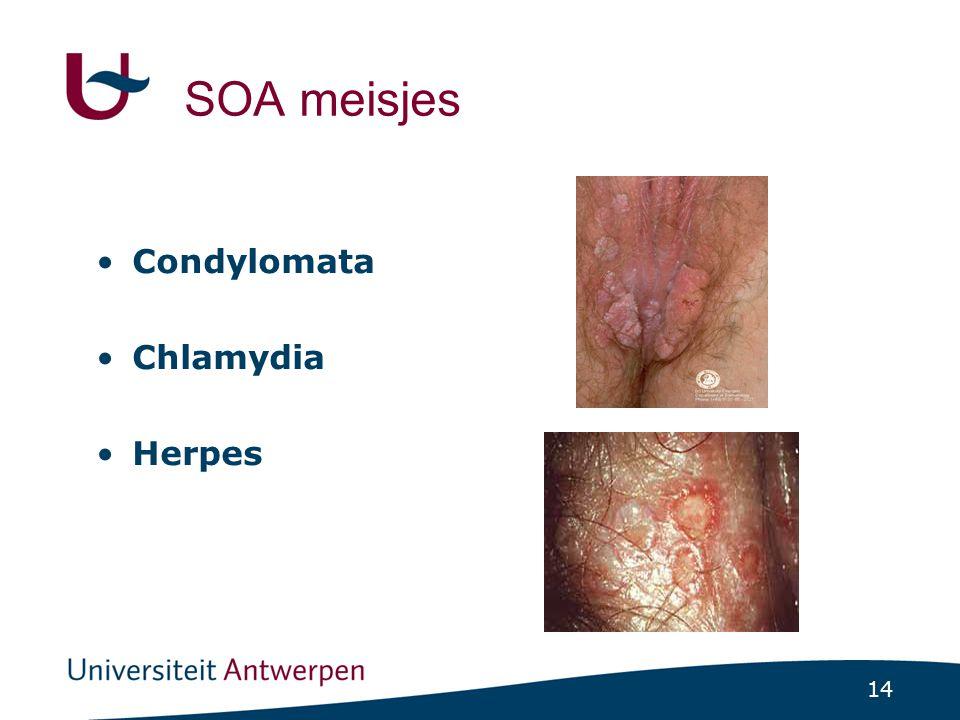 14 SOA meisjes Condylomata Chlamydia Herpes