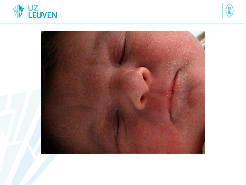 Q2.Which parameter is best indicator for risk to baby.