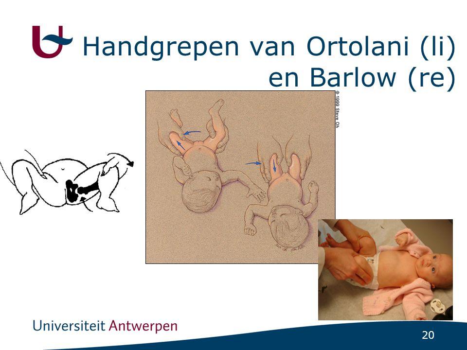 20 Handgrepen van Ortolani (li) en Barlow (re)