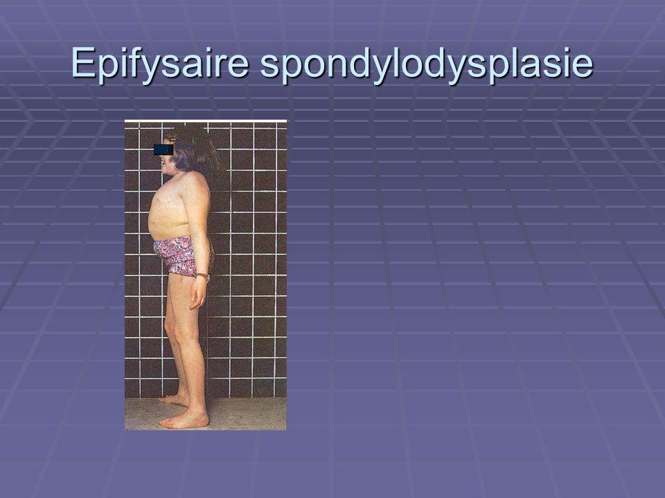Epifysaire spondylodysplasie