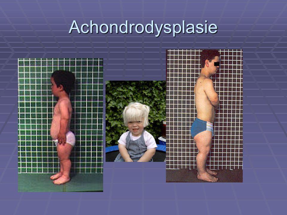 Achondrodysplasie