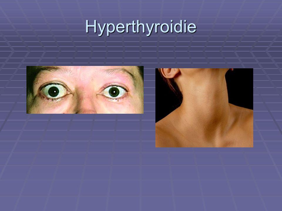 Hyperthyroidie