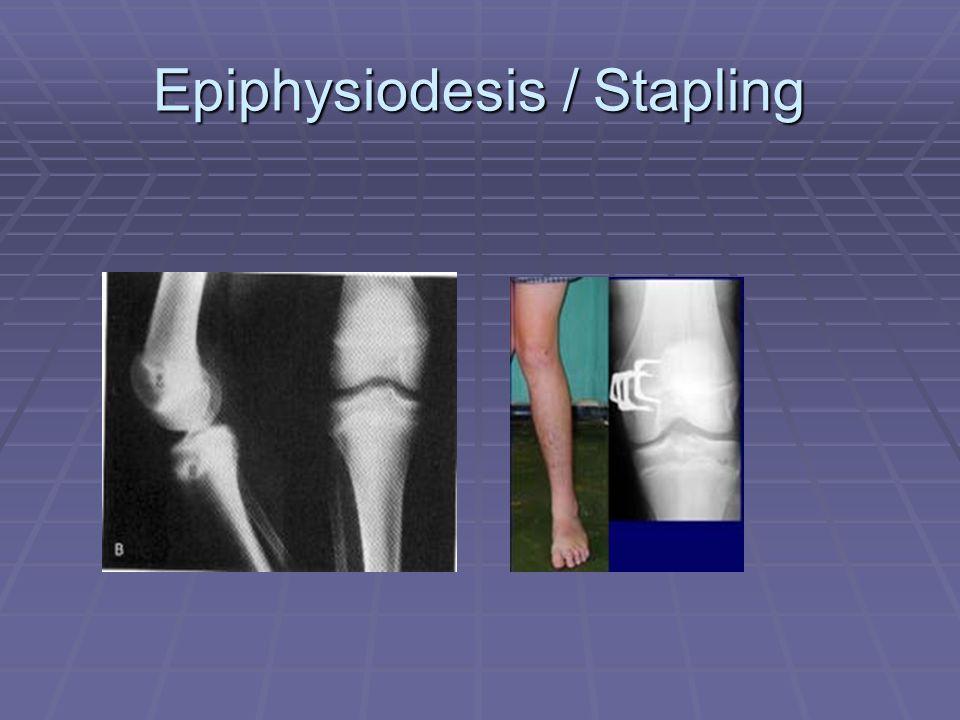 Epiphysiodesis / Stapling
