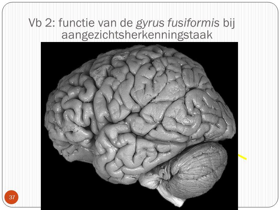 Vb 2: functie van de gyrus fusiformis bij aangezichtsherkenningstaak  37