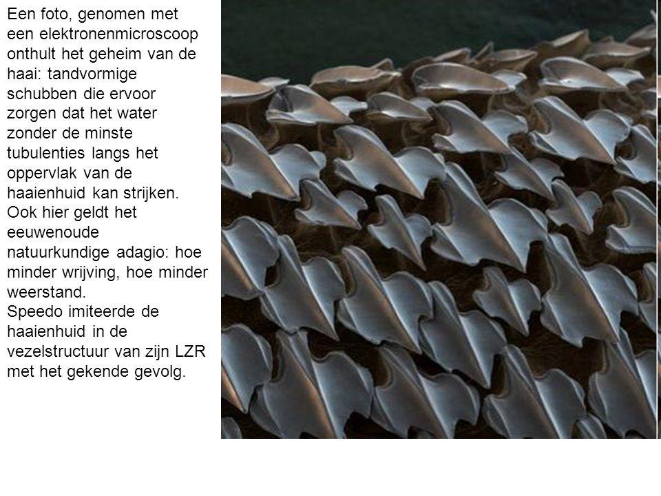 Een foto, genomen met een elektronenmicroscoop onthult het geheim van de haai: tandvormige schubben die ervoor zorgen dat het water zonder de minste t