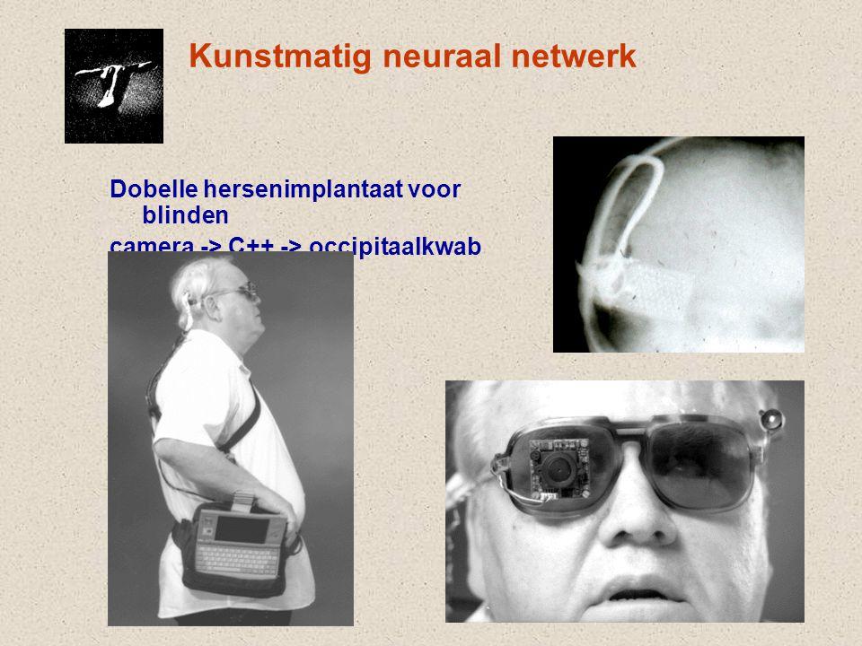 Kunstmatig neuraal netwerk Dobelle hersenimplantaat voor blinden camera -> C++ -> occipitaalkwab
