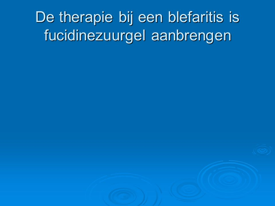 De therapie bij een blefaritis is fucidinezuurgel aanbrengen