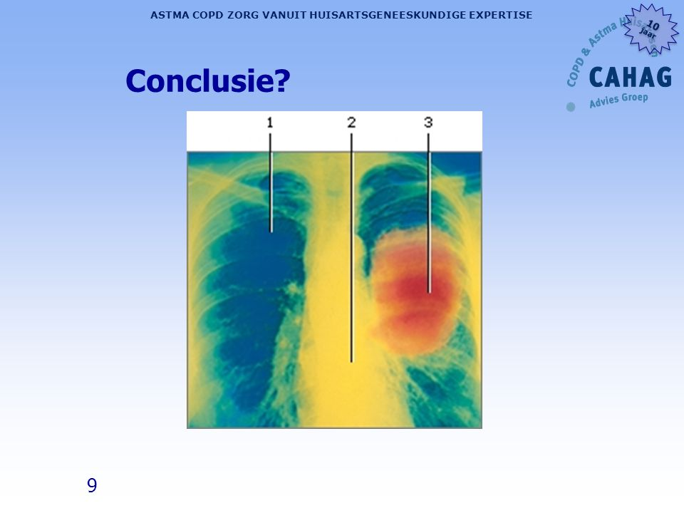 50 ASTMA COPD ZORG VANUIT HUISARTSGENEESKUNDIGE EXPERTISE 10 jaar 10 jaar Take work message: l De meeste COPD patiënten mankeren méér l Raadpleeg bij nieuwe klachten de huisarts l Neem je eigen 'niet-pluis gevoel' serieus l Niet alles wat behandeld kán worden móet ook behandeld worden