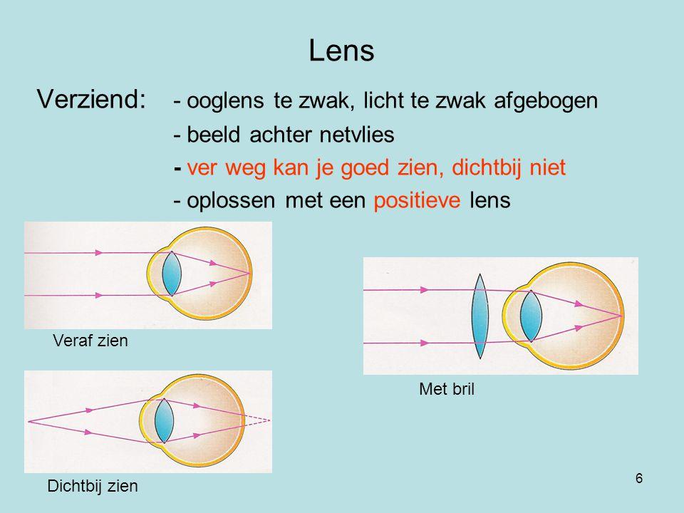 6 Lens Verziend: - ooglens te zwak, licht te zwak afgebogen - beeld achter netvlies - ver weg kan je goed zien, dichtbij niet - oplossen met een posit