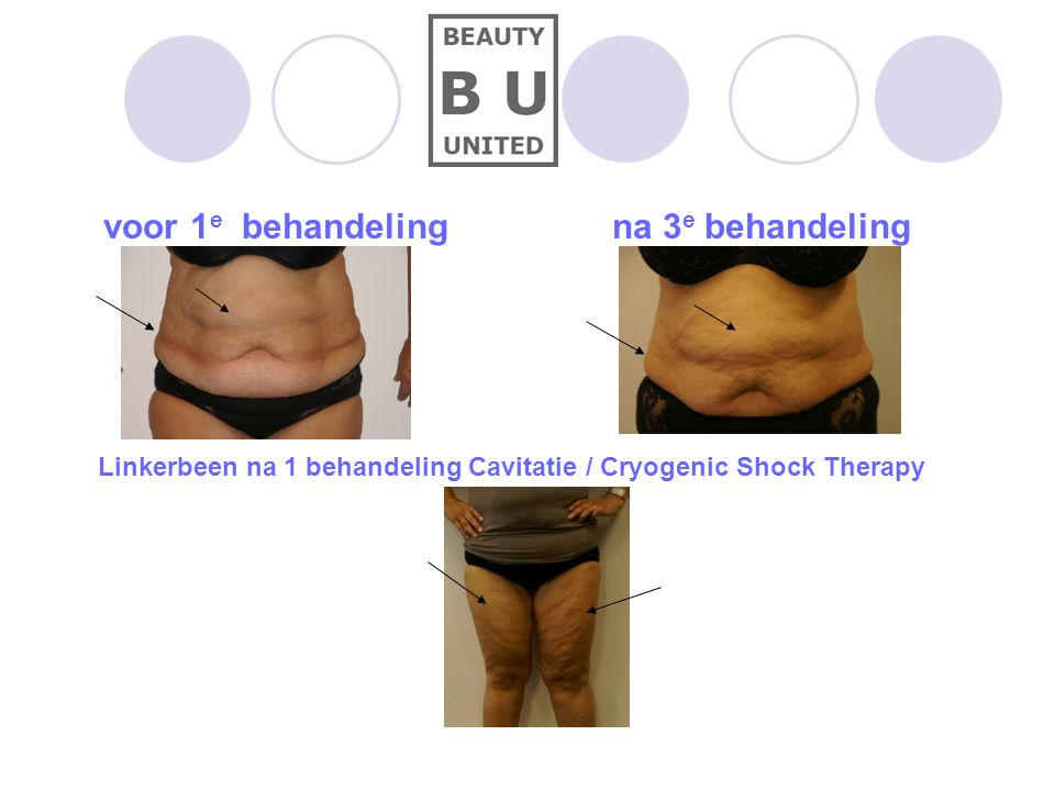 voor 1 e behandeling na 3 e behandeling Linkerbeen na 1 behandeling Cavitatie / Cryogenic Shock Therapy