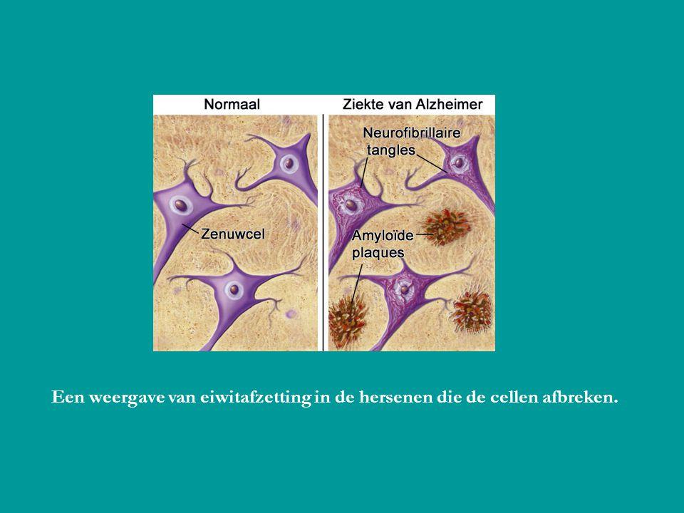Een weergave van eiwitafzetting in de hersenen die de cellen afbreken.