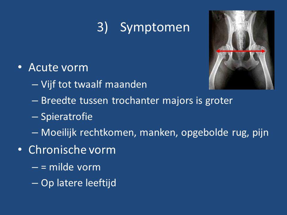 3)Symptomen Acute vorm – Vijf tot twaalf maanden – Breedte tussen trochanter majors is groter – Spieratrofie – Moeilijk rechtkomen, manken, opgebolde