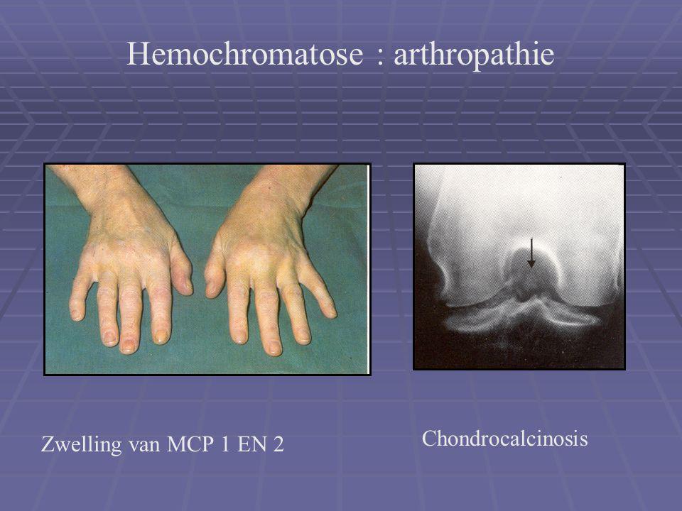 Zwelling van MCP 1 EN 2 Chondrocalcinosis Hemochromatose : arthropathie