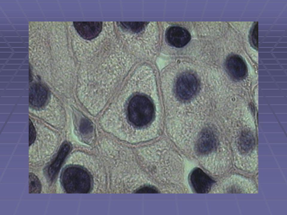 WILSON COELIAKIE AUTOIMMUUNHEPATITIS ALCOHOL EN MEDICATIE STEATOSE EN STEATOHEPATITIS HEPATITIS C (EN B) HEREDITAIRE HEMOCHROMATOSE Hoge prevalentie in risicogroepen Behandeling 50 % succes CHRONISCHE HEPATITIS