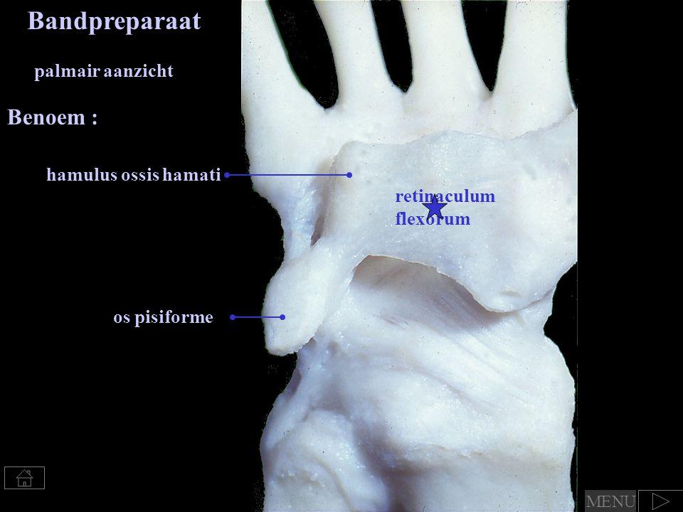 os pisiforme retinaculum flexorum hamulus ossis hamati Bandpreparaat palmair aanzicht Benoem : MENU