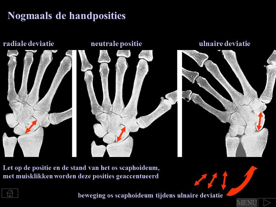 Nogmaals de handposities Let op de positie en de stand van het os scaphoideum, met muisklikken worden deze posities geaccentueerd radiale deviatieneut
