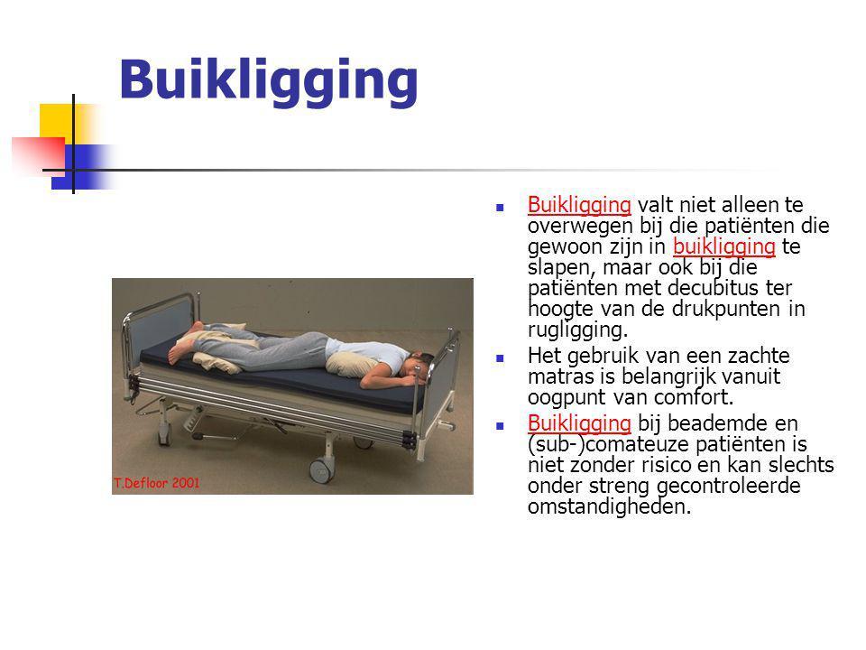 Buikligging Buikligging valt niet alleen te overwegen bij die patiënten die gewoon zijn in buikligging te slapen, maar ook bij die patiënten met decub