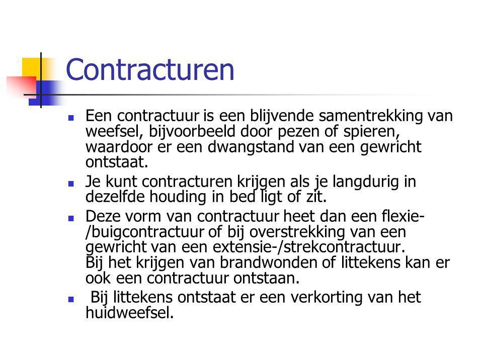 Contracturen Een contractuur is een blijvende samentrekking van weefsel, bijvoorbeeld door pezen of spieren, waardoor er een dwangstand van een gewric