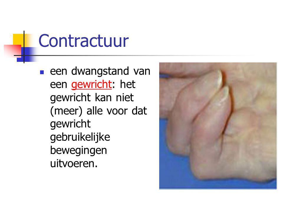 Contractuur een dwangstand van een gewricht: het gewricht kan niet (meer) alle voor dat gewricht gebruikelijke bewegingen uitvoeren.gewricht