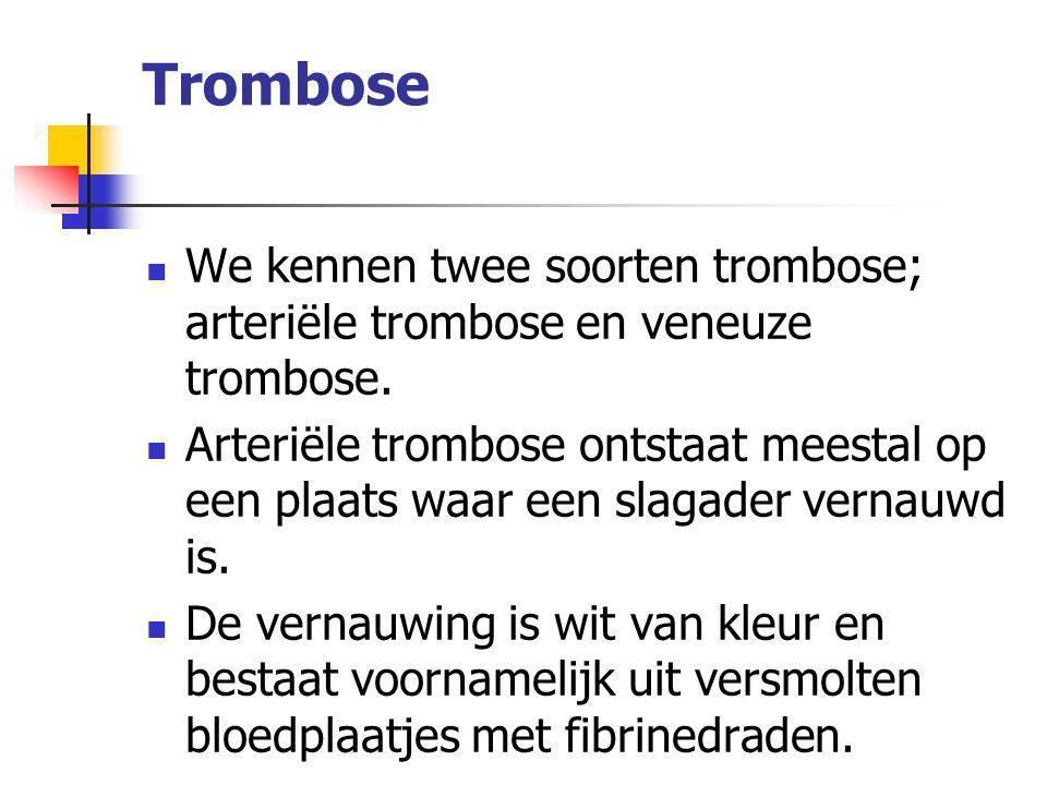 Trombose We kennen twee soorten trombose; arteriële trombose en veneuze trombose. Arteriële trombose ontstaat meestal op een plaats waar een slagader