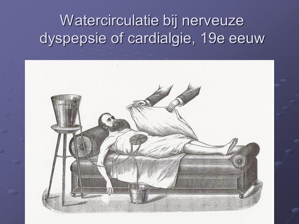 Watercirculatie bij nerveuze dyspepsie of cardialgie, 19e eeuw