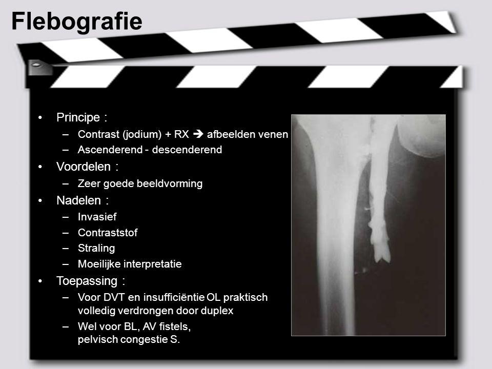 MAY 2007 – 8 Angio NMR Principe : –Contrast (gadolinium) + MR Voordelen : –Niet-invasief  ambulant –Geen straling Nadelen : –Nefrotoxiciteit .