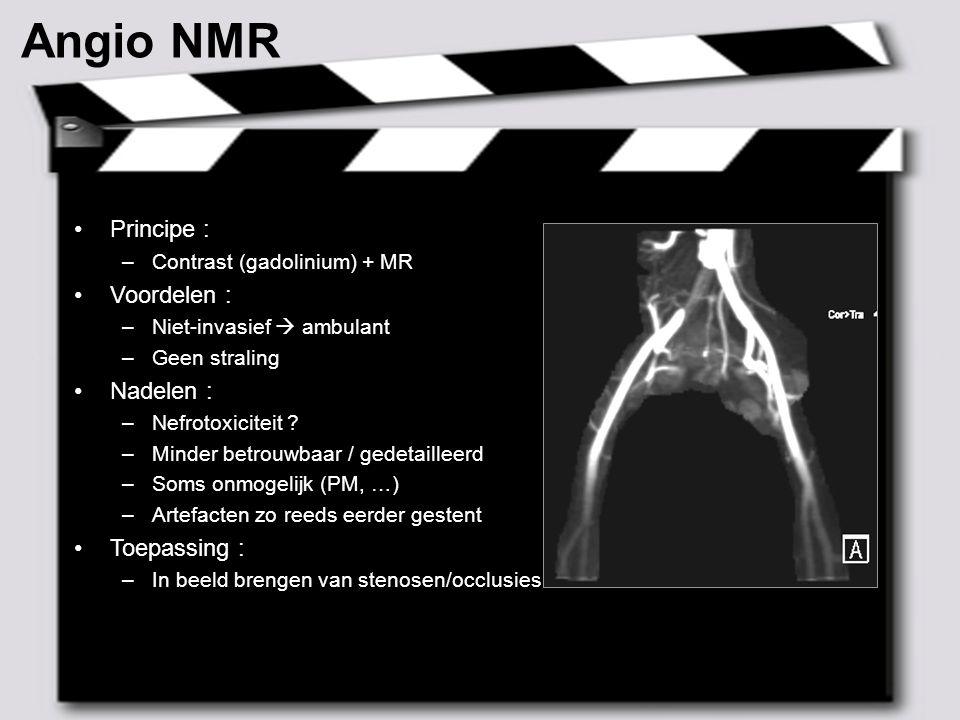 MAY 2007 – 9 CT Scan Principe : –Contrast + RX Voordelen : –Relatief snel en eenvoudig –Laat metingen toe –Niet alleen vasculaire informatie Nadelen : –Contrast –RX Toepassing : –Arterieel : aneurysma's, bloedingen, opvolging endoprothesen –Veneus : longembolen, DVT thorax/abdominaal