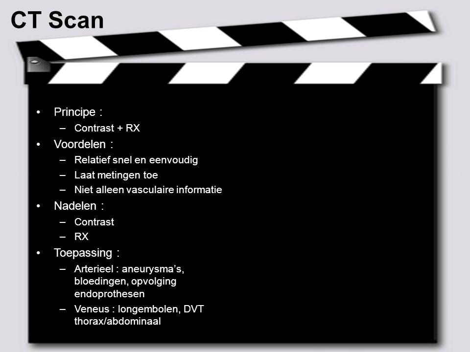 MAY 2007 – 10 ² Angio CT Principe : –Contrast + RX  digitale bewerking Voordelen : –Cfr.