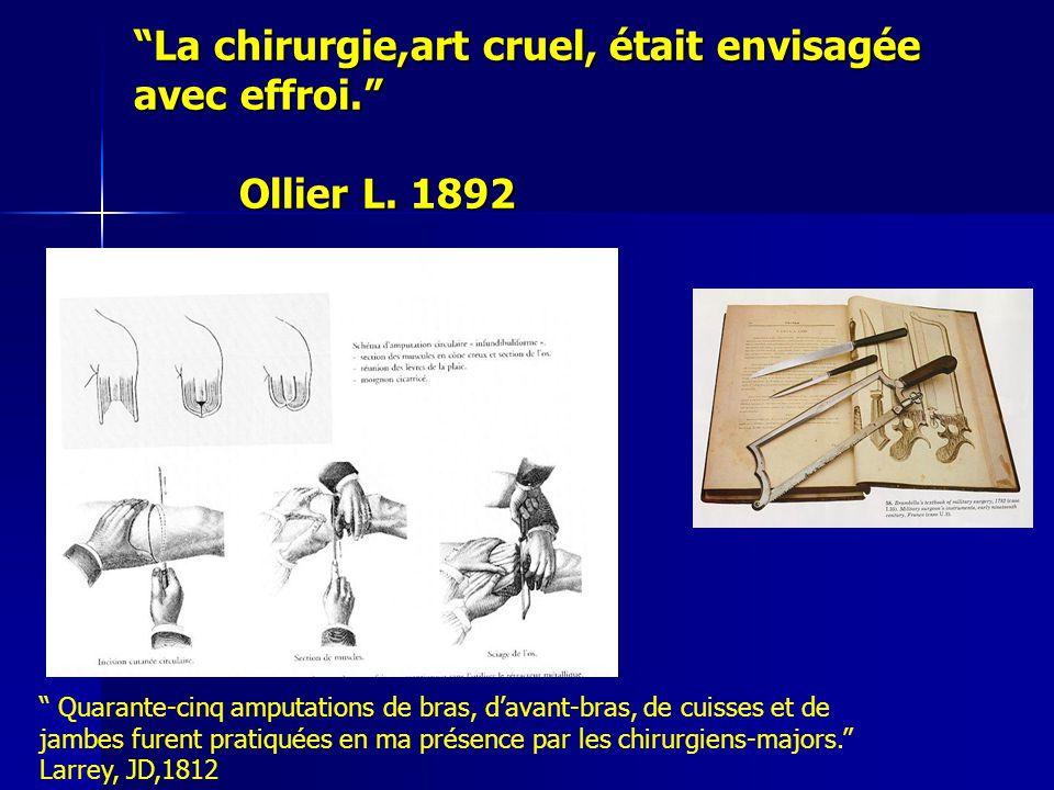 """""""La chirurgie,art cruel, était envisagée avec effroi."""" Ollier L. 1892 """" Quarante-cinq amputations de bras, d'avant-bras, de cuisses et de jambes furen"""