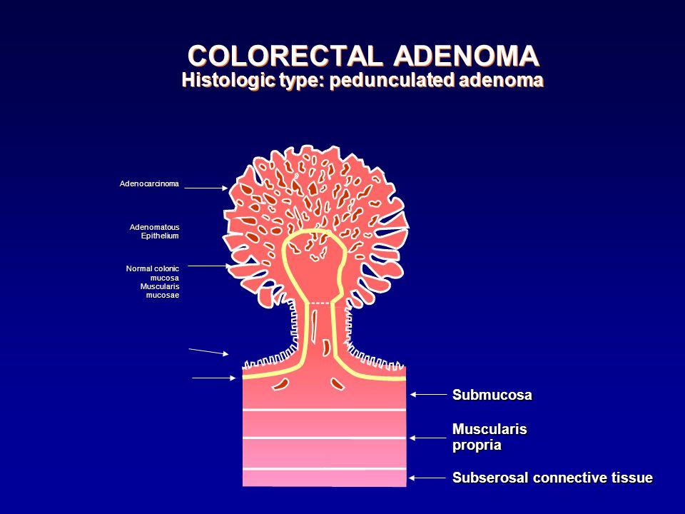 COLORECTAL ADENOMA Histologic type: pedunculated adenoma AdenocarcinomaAdenomatousEpithelium Normal colonic mucosaMuscularismucosae SubmucosaMusculari