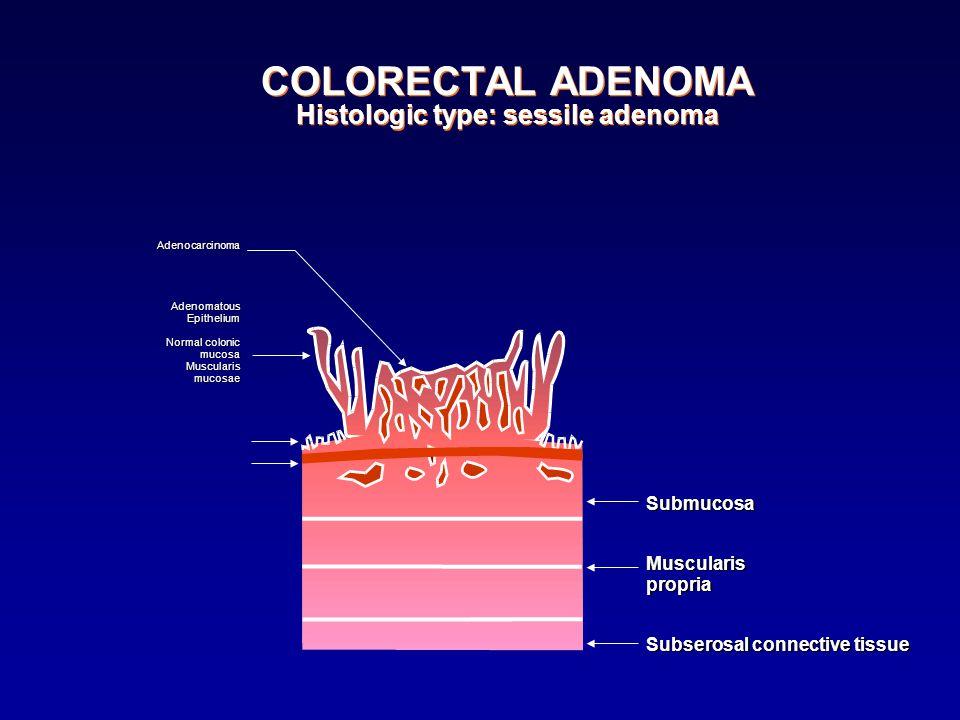 COLORECTAL ADENOMA Histologic type: sessile adenoma AdenocarcinomaAdenomatousEpithelium Normal colonic mucosaMuscularismucosae SubmucosaMuscularisprop
