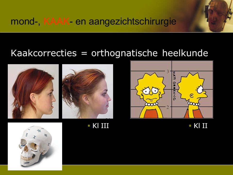 mond-, KAAK- en aangezichtschirurgie Kaakgewrichtspathologie  luxaties  pijn-dysfunctie parafuncties, musculair