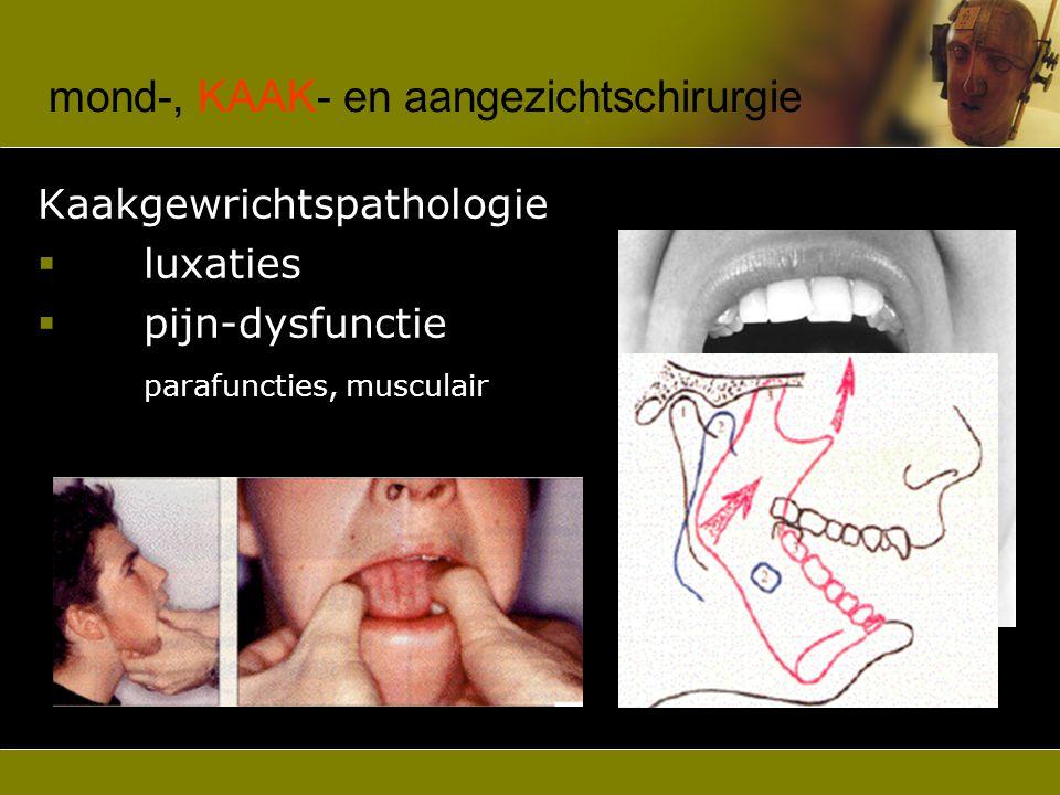 mond-, kaak- en AANGEZICHTschirurgie Speekselklier pathologie  mucocoele  ranula  lithiasis  tumoren
