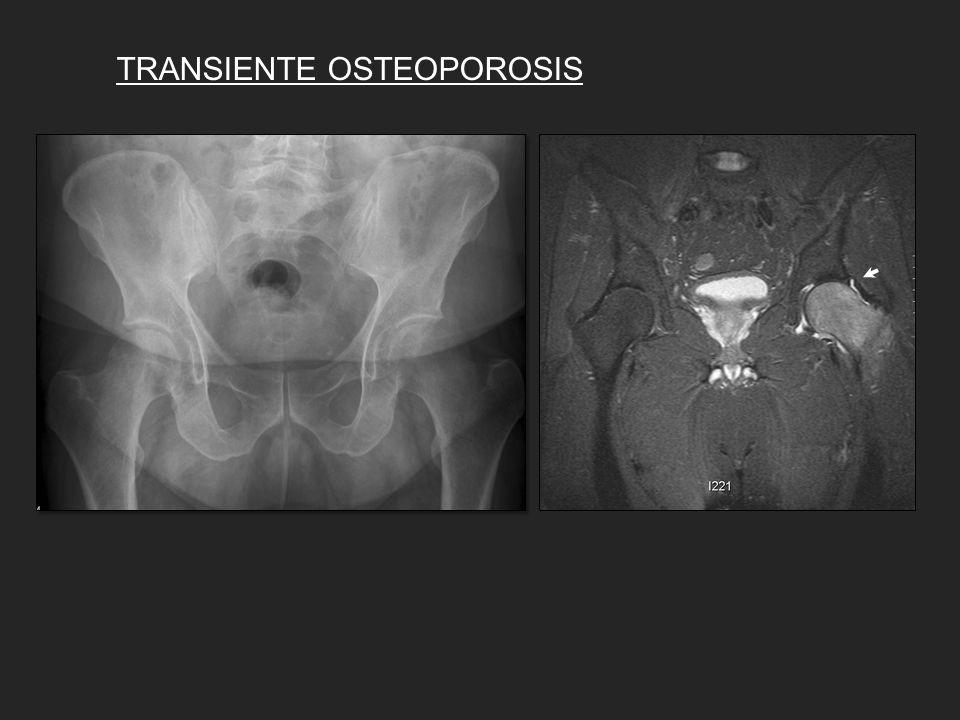 TRANSIENTE OSTEOPOROSIS