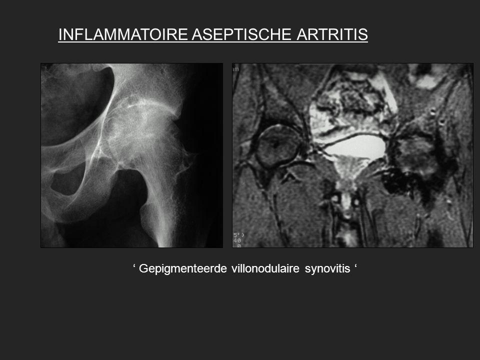 INFLAMMATOIRE ASEPTISCHE ARTRITIS ' Gepigmenteerde villonodulaire synovitis '