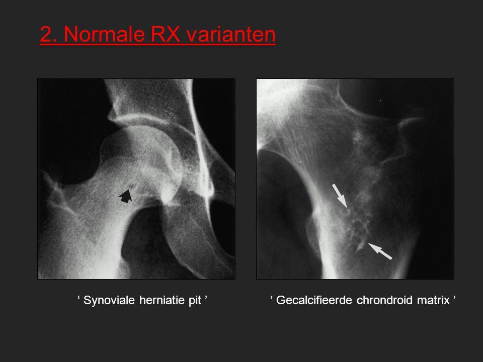 2. Normale RX varianten ' Synoviale herniatie pit '' Gecalcifieerde chrondroid matrix '