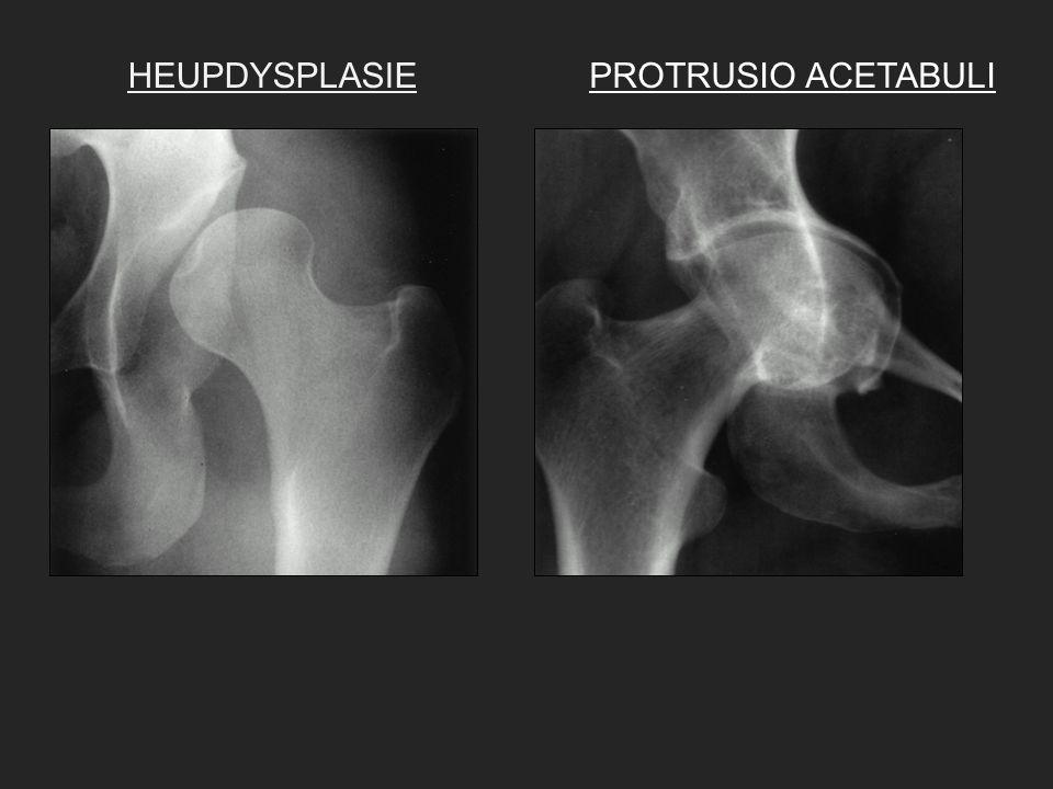 Dr.Y. VankanDr. Y. De Bruecker Dienst Radiologie Imeldaziekenhuis 015.50.50.80.