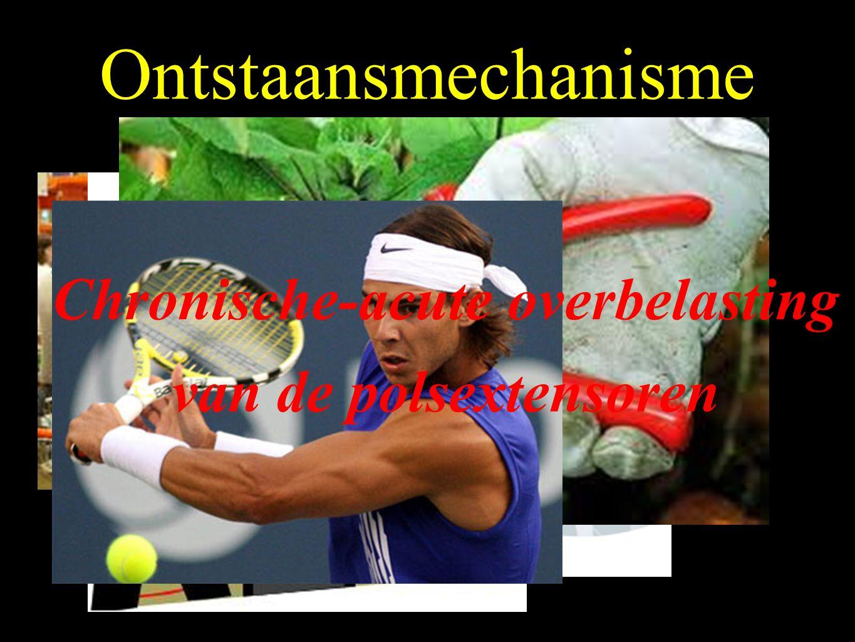 Tenniselleboog Chronische pijn obv een tendinopathie thv ECRB aanhechting Tendinitis - Tendinosis - Scheur Microscheurtjes tussen Common extensorinsertie en het periost