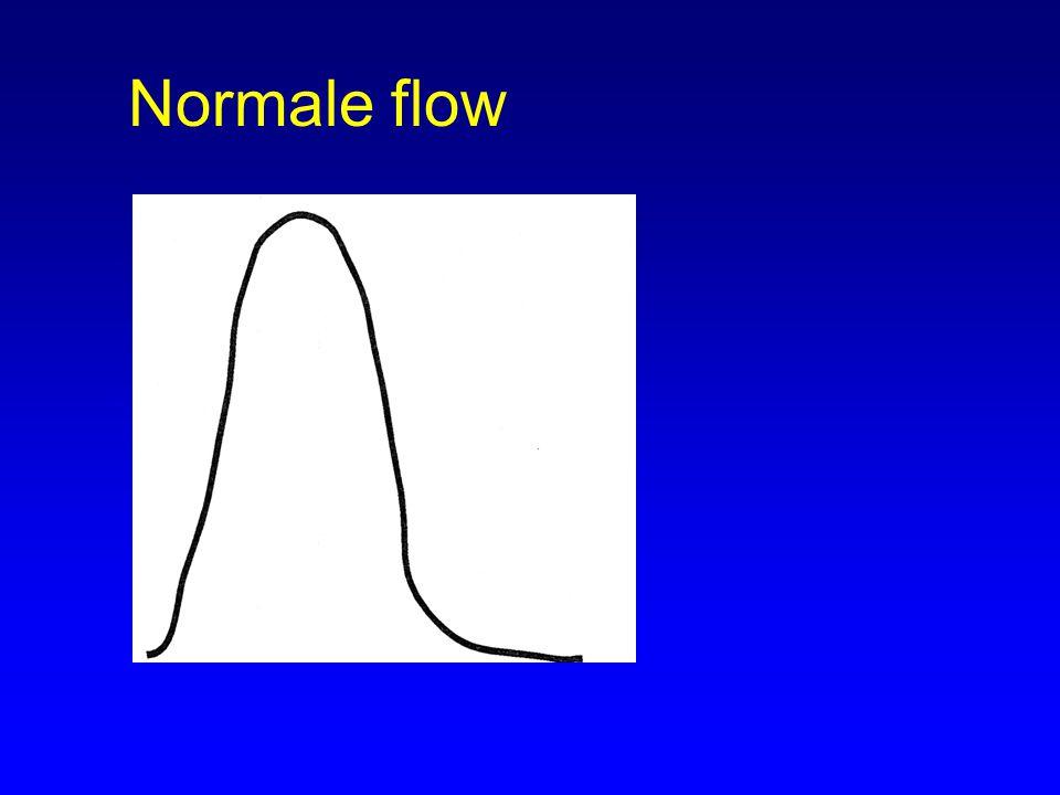 Normale flow