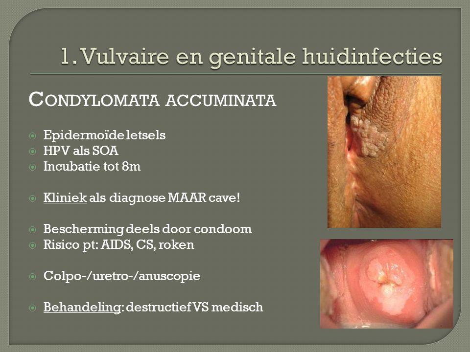 C ONDYLOMATA ACCUMINATA  Epidermoïde letsels  HPV als SOA  Incubatie tot 8m  Kliniek als diagnose MAAR cave!  Bescherming deels door condoom  Ri