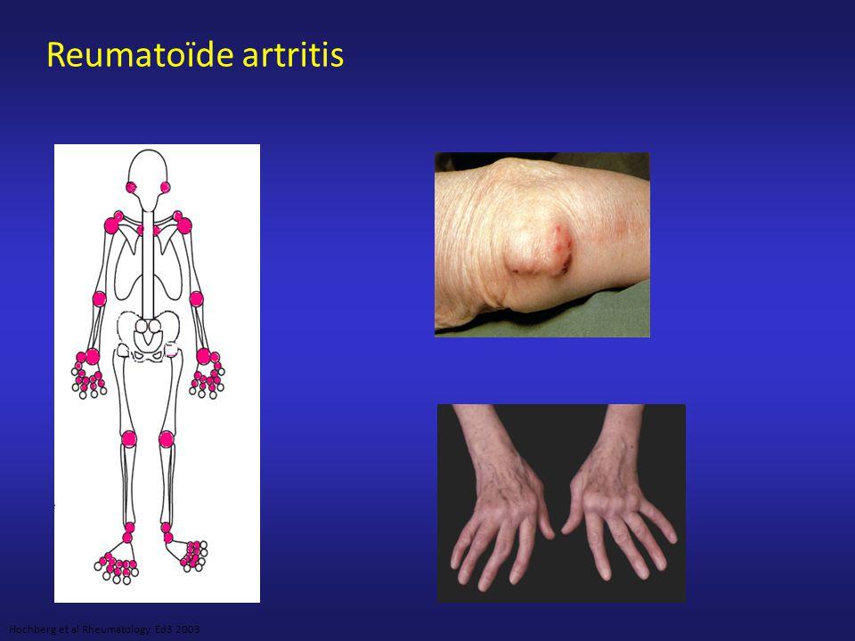 Reumatoïde Artritis ACR criteria voor diagnose 1.Ochtendstijfheid > 1 uur * 2.Zwelling van 3 of meer gewrichtsgroepen* 3.Zwelling in pols, MCP ' s of PIP ' s * 4.Symmetrische gewrichtszwelling * 5.Erosieve afwijkingen op r ö ntgenfoto 6.Reuma-noduli 7.Reumafactor *Een pati ë nt heeft RA indien zij/hij beantwoordt aan minstens 4 op 7 criteria Criteria 1 tot 4 dienen tenminste 6 weken aanwezig te zijn Arnett FC et al.