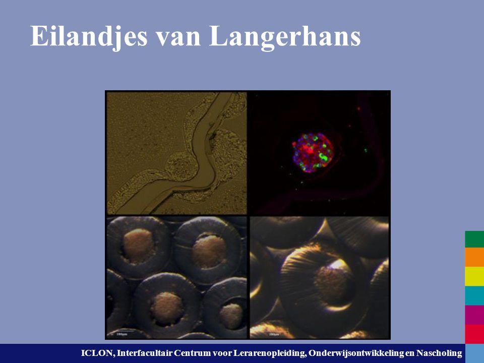 Eilandjes van Langerhans